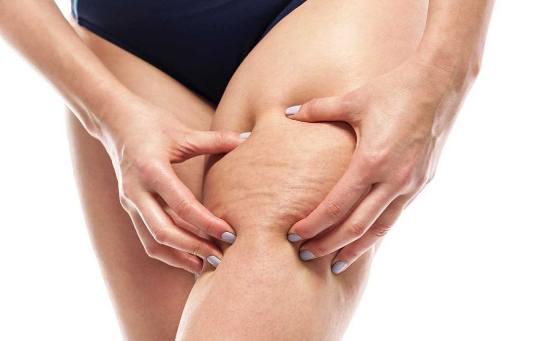 Come curare la cellulite: i rimedi che funzionano